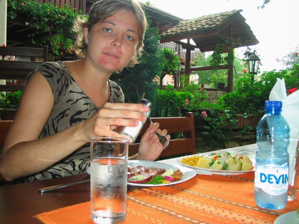 Veronika Hanzlíková vroce 2007 užívala kortikoidní léčbu ana obličeji (měsíčkovitý obličej) to jde vidět.
